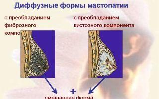 Дуктография молочной железы: что это такое, показания, правила проведения процедуры