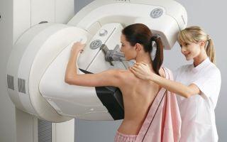 Болит под мышкой у женщины — слева или справа: основные причины боли