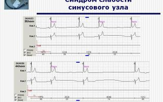 Синдром слабости синусового узла (сссу): симптомы и лечение