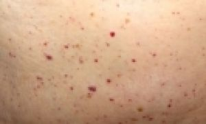 Петехии на коже: причины и фото сыпи, симптомы и лечение у взрослых