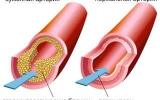 Гиперлипидемия: что это такое, как лечить, классификация и симптомы