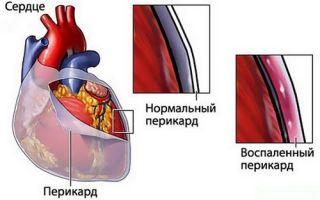 Ревматизм сердца (ревмокардит): что это такое, симптомы у взрослых и лечение