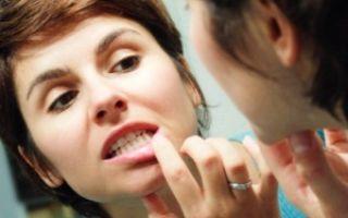 Тромбоцитопения: что это такое, причины, симптомы и лечение у взрослых