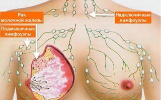 Признаки рака груди у женщин: как проявляются первые симптомы рака