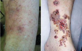 Васкулит: что это за болезнь, фото, симптомы и лечение