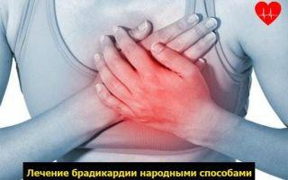 Синусовая брадикардия: что это такое, симптомы и лечение выраженной и умеренной форм