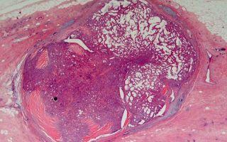 Внутрипротоковая папиллома молочной железы: симптомы и операция по удалению