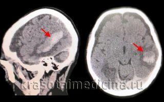 Геморрагический инсульт головного мозга: что это, симптомы и лечение
