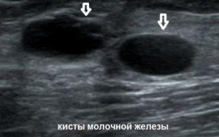 Доброкачественная опухоль молочной железы: разновидности и методы лечения