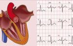 Гипертрофия левого предсердия: что это такое, симптомы и как лечить