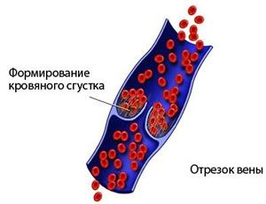 Мезентериальный тромбоз кишечника: симптомы, лечение и последствия