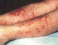 Геморрагический васкулит: фото, причины, лечение код по МКБ-10
