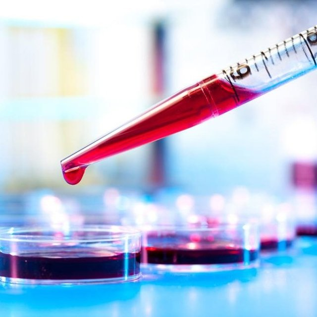 Мочевая кислота в крови повышена: причины, что это значит, лечение и последствия