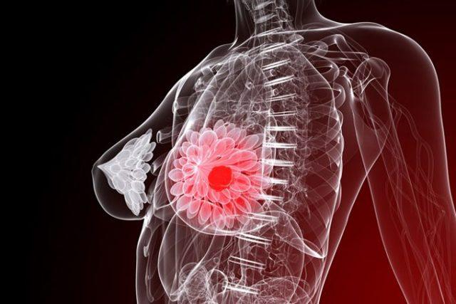 Фиброаденоматоз молочной железы: что это такое, диагностика и методы лечения