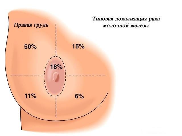 Рак молочной железы 1 стадии: прогноз, симптомы, диагностика, этапы лечения