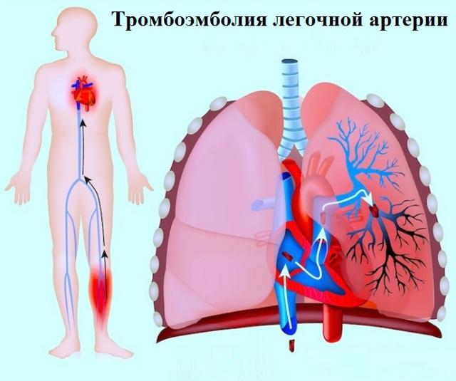 Тромбоэмболия легочной артерии (ТЭЛА): симптомы, лечение, неотложная помощь