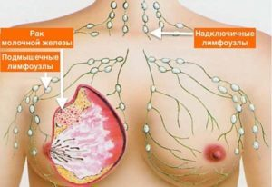 Рак молочной железы 3 степени: продолжительность жизни, прогноз, лечение
