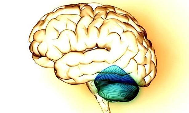 Инсульт мозжечка головного мозга: последствия, симптомы, лечение