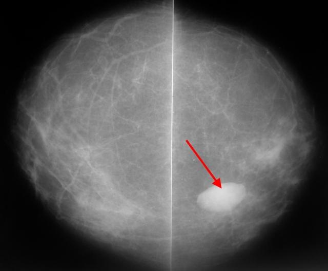 Фиброзно-жировая инволюция молочных желез: что это такое, признаки, причины