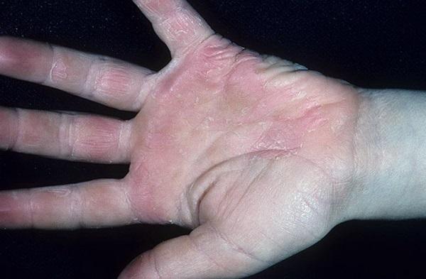 Болезнь Кавасаки у детей: что это такое, симптомы, причины и лечение