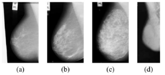 Строение груди у женщин: анатомия молочной железы, соска и грудины