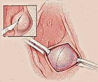 Шишка в грудной железе у женщин: симптомы абсцесса, возможные заболевания