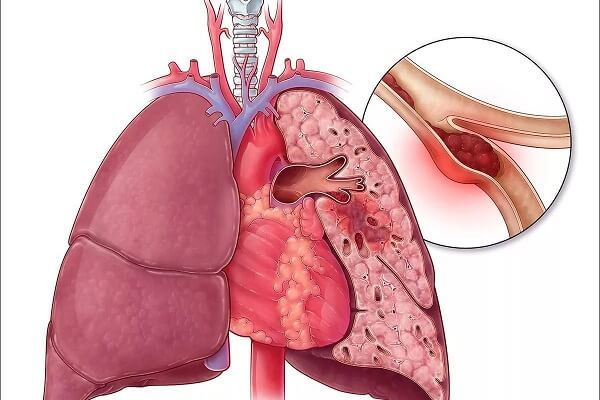 Воздушная эмболия: что это такое, причины, симптомы и лечение