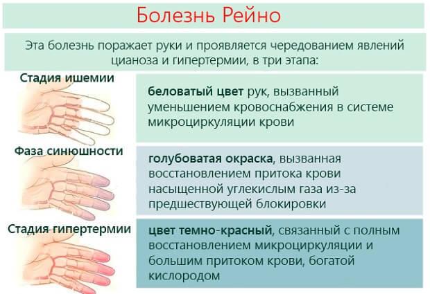 Синдром Рейно: что это такое, симптомы у женщин и лечение болезни