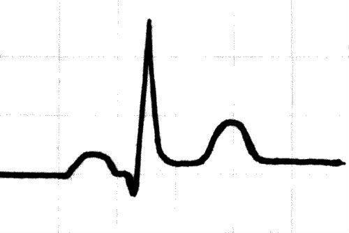 Нарушение процессов реполяризации на ЭКГ: что это такое и как лечить