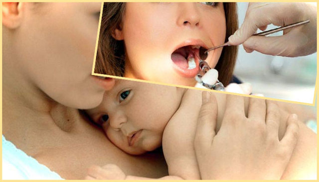 Можно ли лечить зубы при грудном вскармливании: особенности лечения кормящей мамы