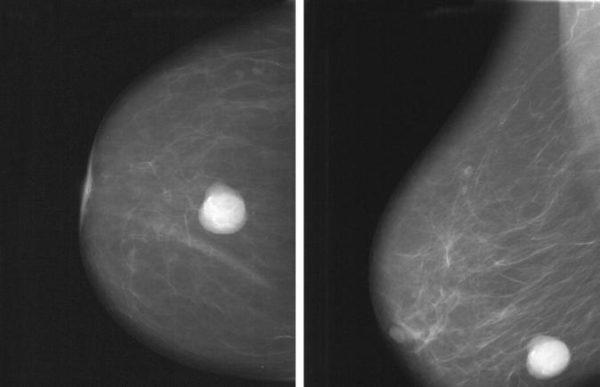 Атипичная киста молочной железы: что это такое, причины появления, лечение