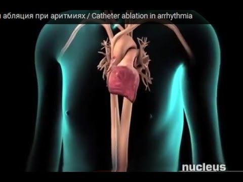 Наджелудочковая экстрасистолия: что это такое, симптомы, лечение и последствия