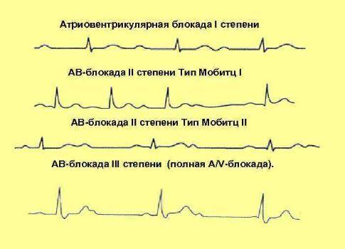 Нарушение внутрижелудочковой проводимости сердца: что это такое, симптомы и лечение