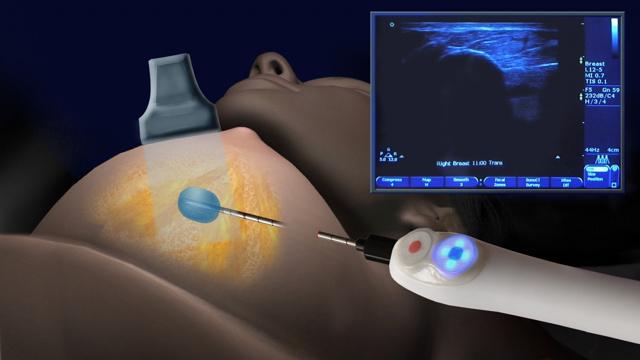 Пункция молочной железы: что это такое, как берут, последствия и результаты