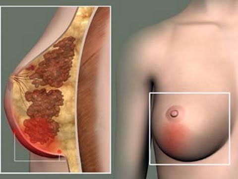 Болит грудь при кормлении: почему у кормящей мамы болят молочные железы