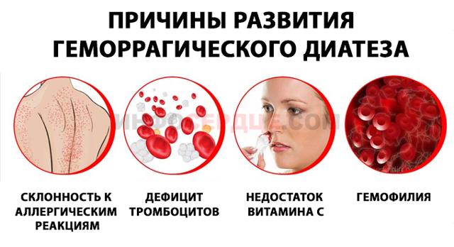 Геморрагический диатез: что это такое, фото, диагностика, симптомы и лечение