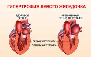Гипертрофия правого желудочка: ЭКГ признаки, симптомы, что это и как лечить