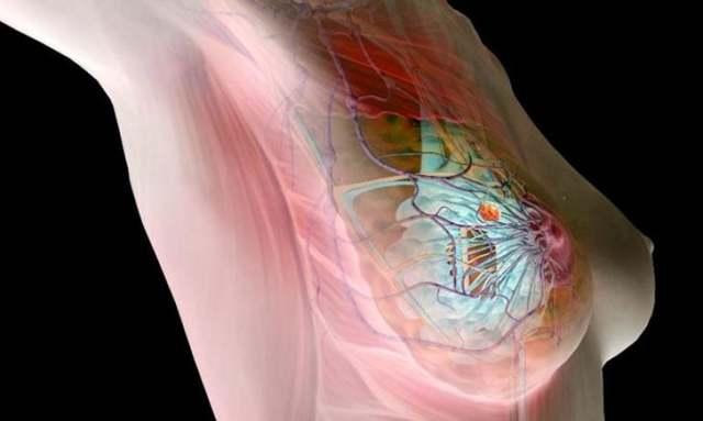 Фиброз молочной железы: что это такое, разновидности, эффективные методы лечения