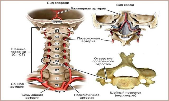 Синдром позвоночной артерии: симптомы, лечение, прогноз и последствия