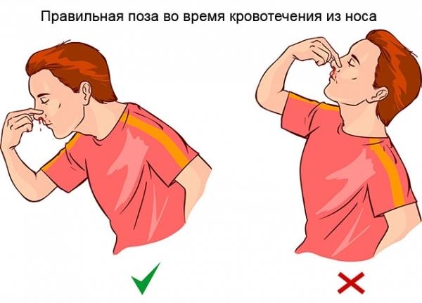 Кровь из носа: причины у взрослого, что делать и как остановить