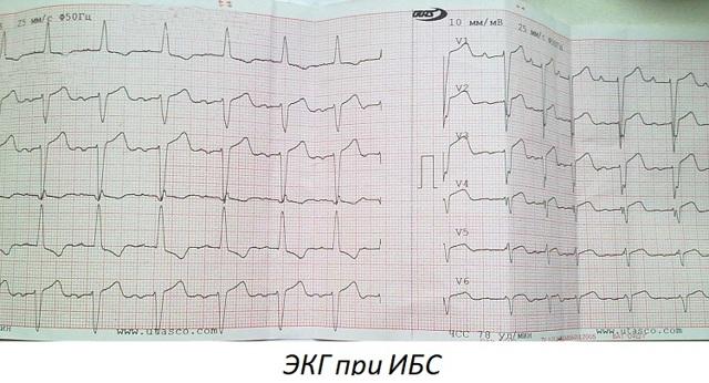 Ишемия сердца: что это такое, симптомы и лечение ИБС