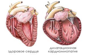 Дилатационная кардиомиопатия: что это такое, лечение и прогноз жизни