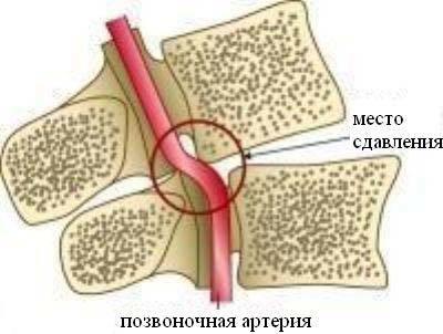 Гипоплазия левой позвоночной артерии: что это такое, лечение и симптомы