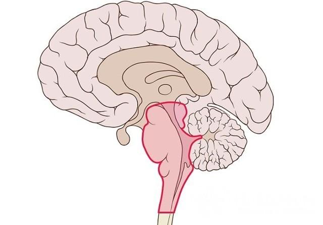 Стволовой инсульт: что это такое, прогноз выздоровления, симптомы и лечение