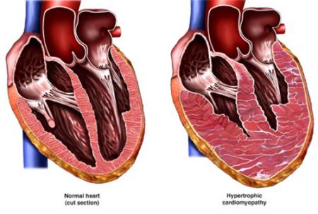 Диастолическая дисфункция левого желудочка: что это такое, симптомы нарушения и лечение