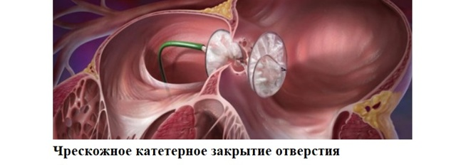 Дефект межпредсердной перегородки (ДМПП):у детей, новорожденных и взрослых