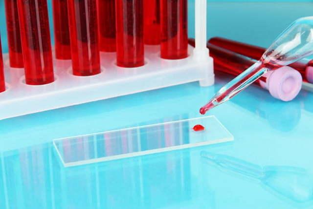 Мочевина в крови повышена: причины, что это значит, как лечить и последствия