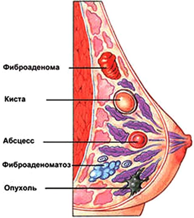 Железистая ткань молочной железы: что это такое, возможные заболевания