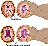 Внутричерепная гипертензия (ВЧГ): что это такое, у взрослых и детей, симптомы и лечение