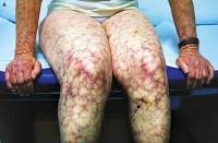 (АФС) Антифосфолипидный синдром: что это такое, диагностика, симптомы и лечение